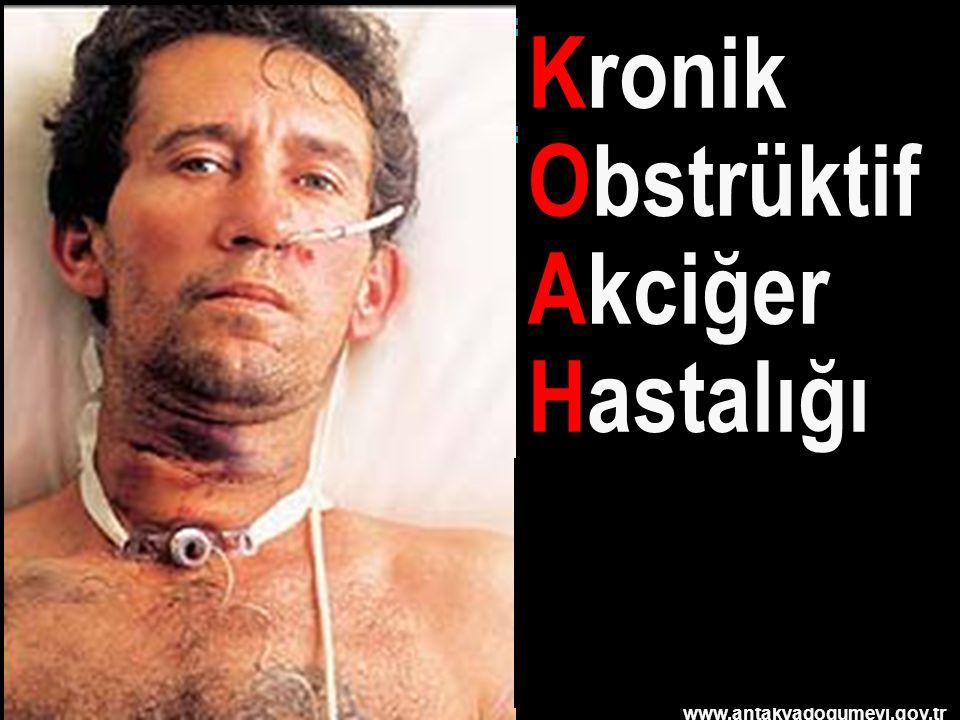 www.antakyadogumevi.gov.tr Kronik Obstrüktif Akciğer Hastalığı