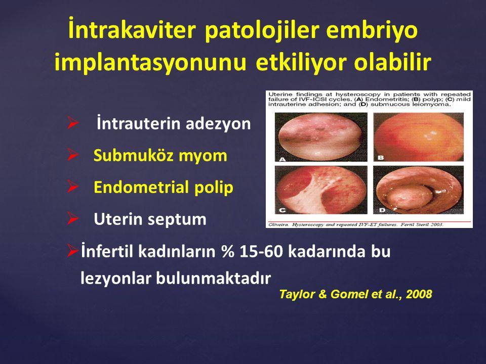 Office Hysteroscopy after Recurrent IVF/ICSI Failure ( Bozdağ G et al., RBM Online, 2008) StudyDesign nNo hysteroscopy group Hysteroscopy group Surgically corrected Normal Schiano et al., 1999Retrospective73N/A22N/A Oliviera et al., 2003Prospective observational 55N/A50*20* Demirol and Gürgan, 2004Randomized controlled trial 21022**30*33* Rama Raju et al., 2006Randomized controlled trial 25526**37*44*