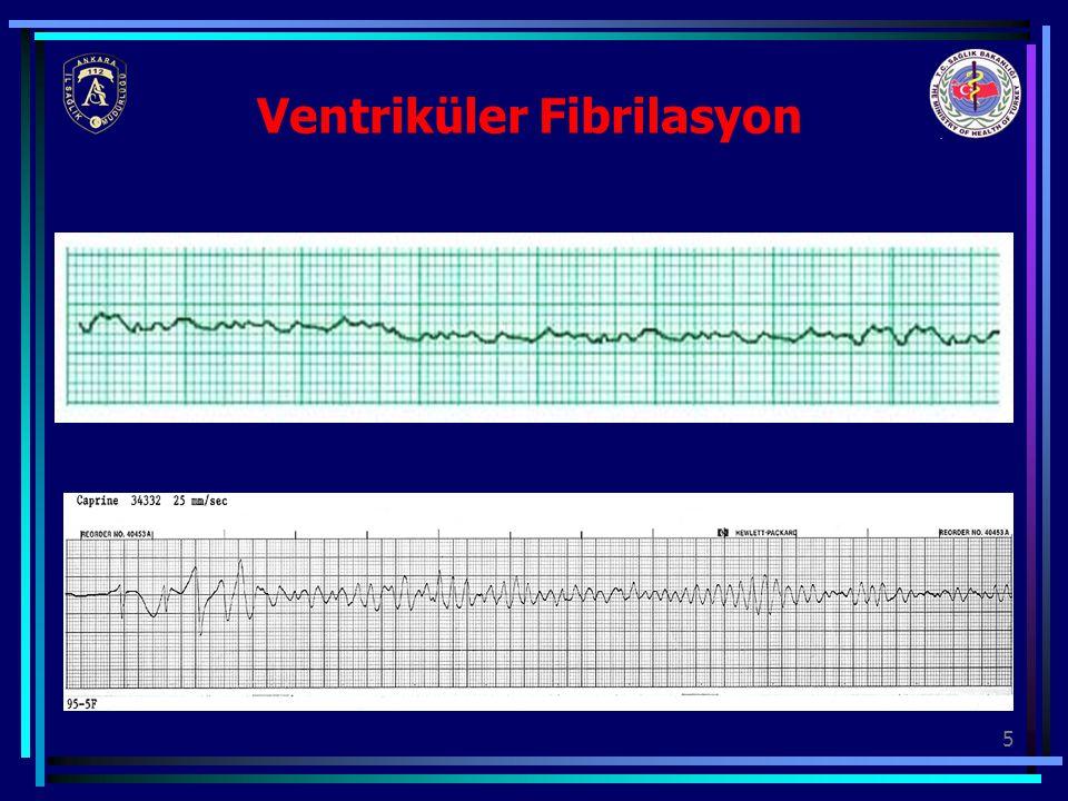 26 QRS'i DEĞERLENDİR Normal sinus ritmi sağlandı mı.