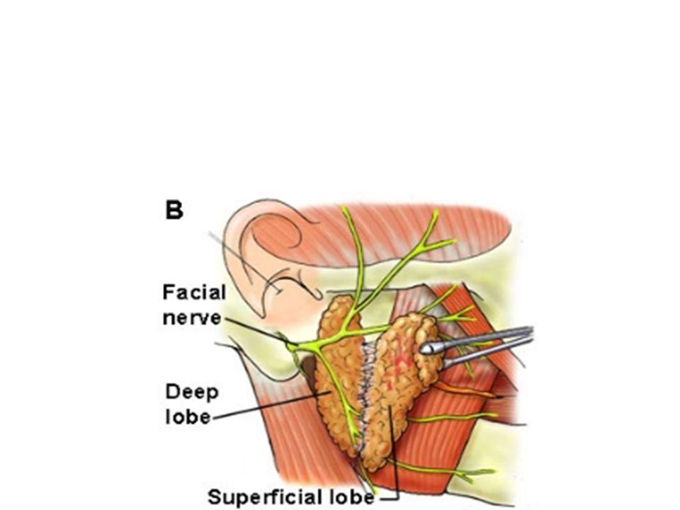 Olguların %90 ı parotiste, %10 u submandibuler ve minör bezlerde görülür.Kadınlarda daha sıktır.En önemli özelliği lokal infitratif davranmasıdır.Tedavi cerrahidir.