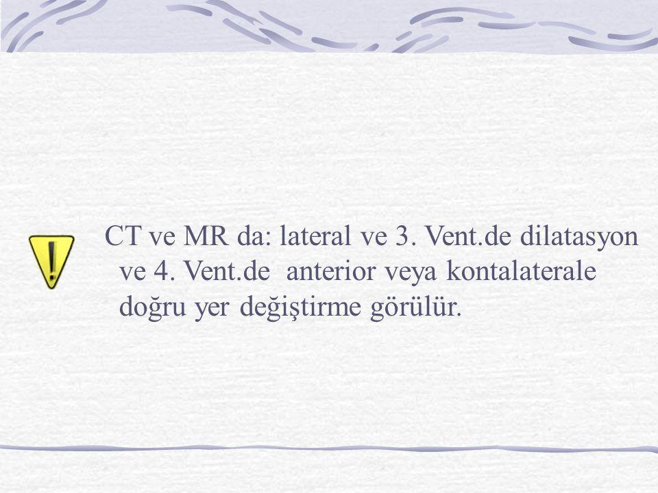 CT ve MR da: lateral ve 3. Vent.de dilatasyon ve 4. Vent.de anterior veya kontalaterale doğru yer değiştirme görülür.