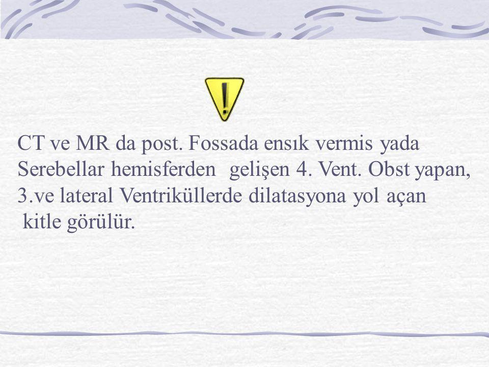 CT ve MR da post. Fossada ensık vermis yada Serebellar hemisferden gelişen 4. Vent. Obst yapan, 3.ve lateral Ventriküllerde dilatasyona yol açan kitle