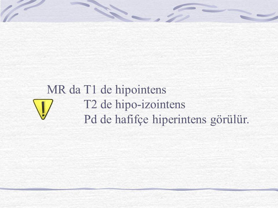 MR da T1 de hipointens T2 de hipo-izointens Pd de hafifçe hiperintens görülür.