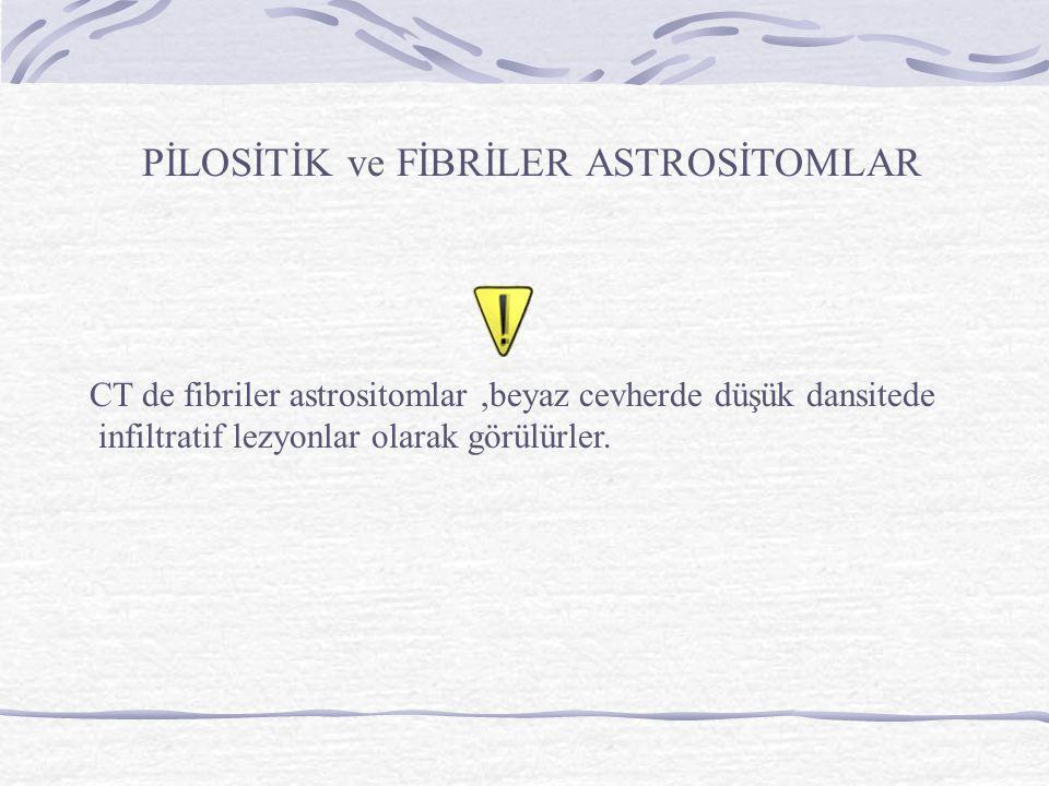PİLOSİTİK ve FİBRİLER ASTROSİTOMLAR CT de fibriler astrositomlar,beyaz cevherde düşük dansitede infiltratif lezyonlar olarak görülürler.