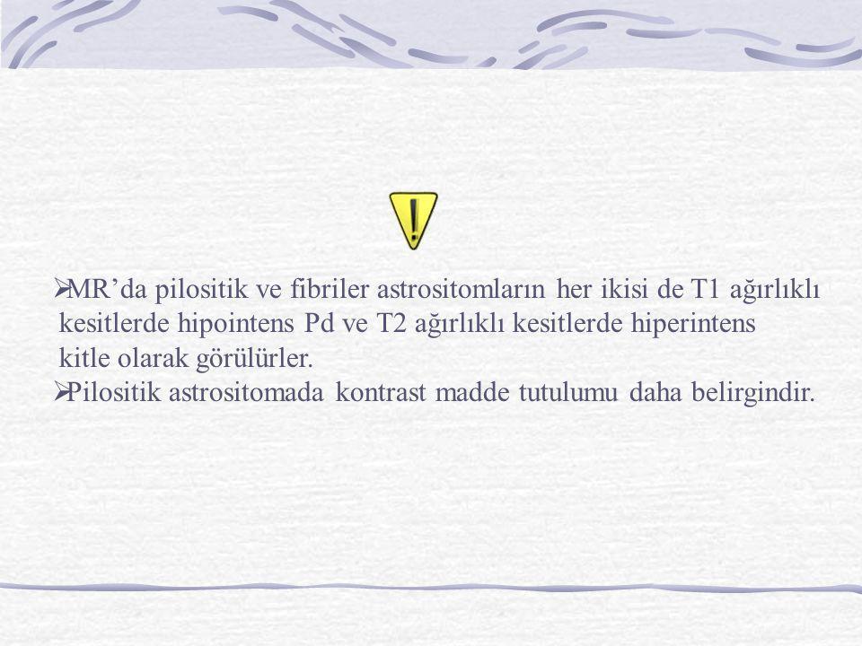  MR'da pilositik ve fibriler astrositomların her ikisi de T1 ağırlıklı kesitlerde hipointens Pd ve T2 ağırlıklı kesitlerde hiperintens kitle olarak g