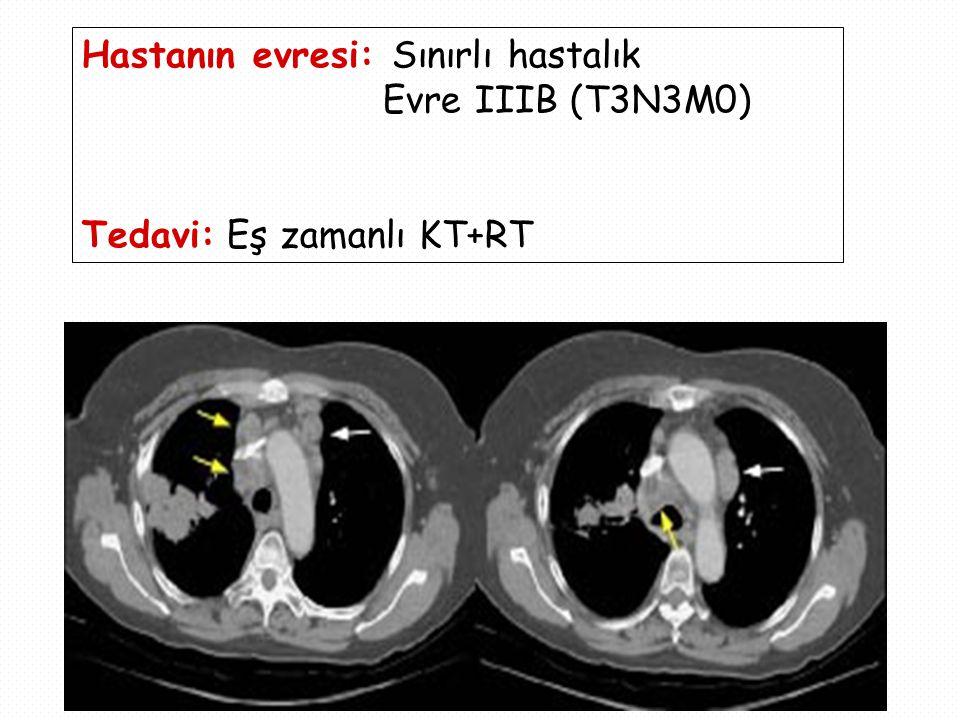 Hastanın evresi: Sınırlı hastalık Evre IIIB (T3N3M0) Tedavi: Eş zamanlı KT+RT