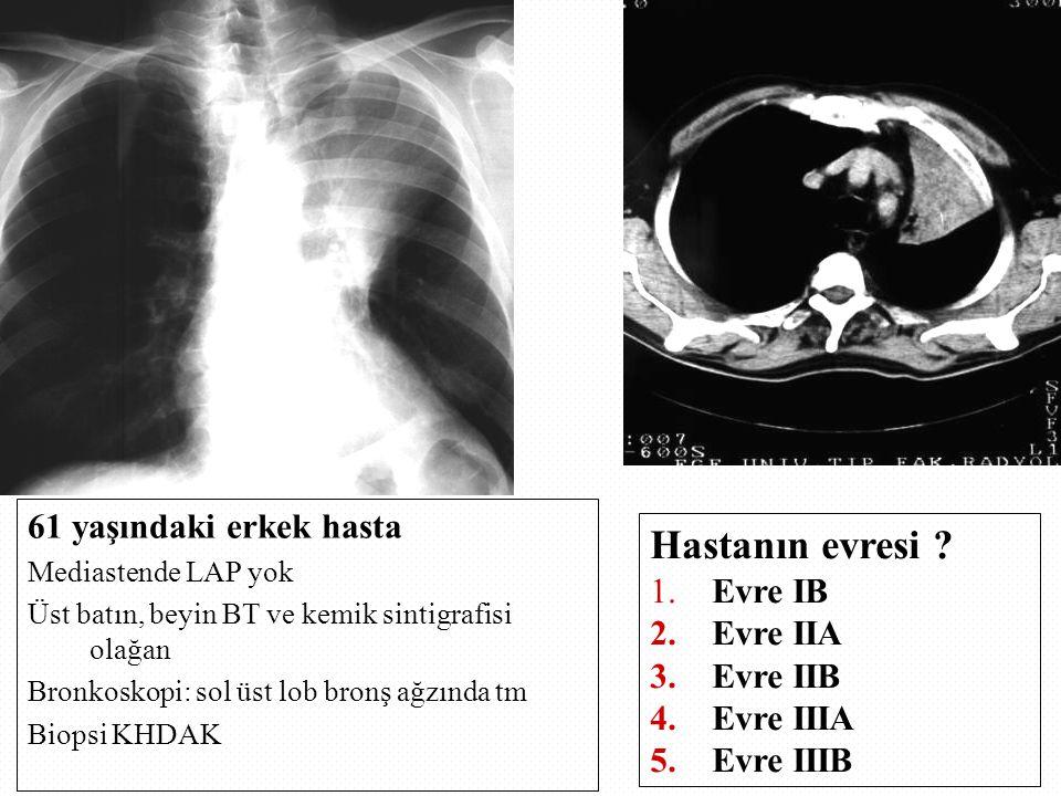 61 yaşındaki erkek hasta Mediastende LAP yok Üst batın, beyin BT ve kemik sintigrafisi olağan Bronkoskopi: sol üst lob bronş ağzında tm Biopsi KHDAK Hastanın evresi .