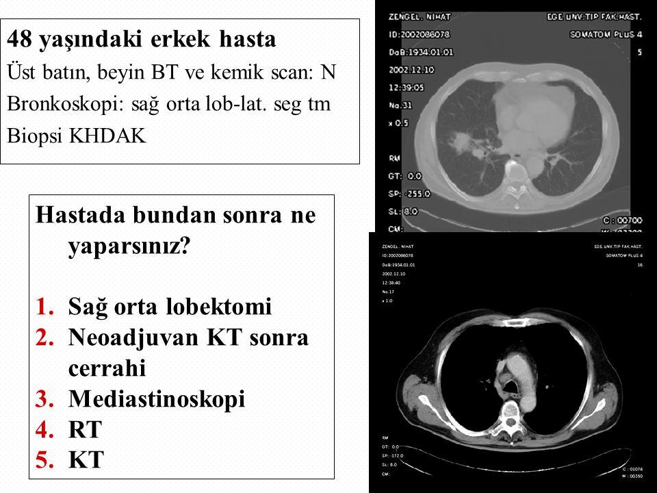 48 yaşındaki erkek hasta Üst batın, beyin BT ve kemik scan: N Bronkoskopi: sağ orta lob-lat.
