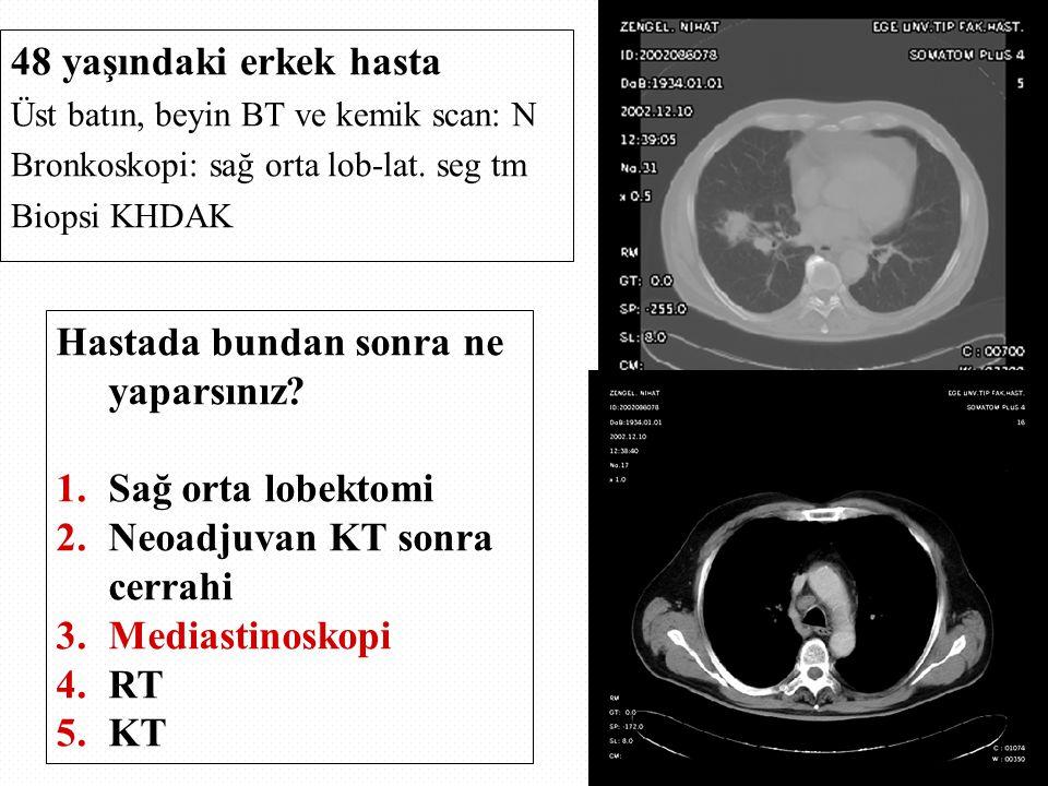 48 yaşındaki erkek hasta Üst batın, beyin BT ve kemik scan: N Bronkoskopi: sağ orta lob-lat. seg tm Biopsi KHDAK Hastada bundan sonra ne yaparsınız? 1