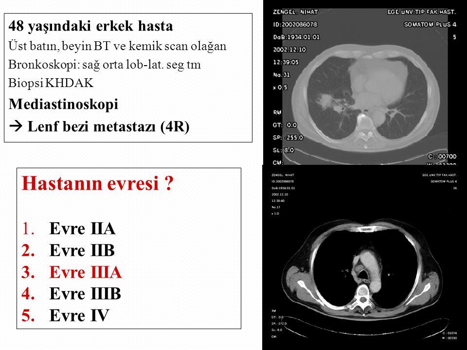 48 yaşındaki erkek hasta Üst batın, beyin BT ve kemik scan olağan Bronkoskopi: sağ orta lob-lat. seg tm Biopsi KHDAK Mediastinoskopi  Lenf bezi metas