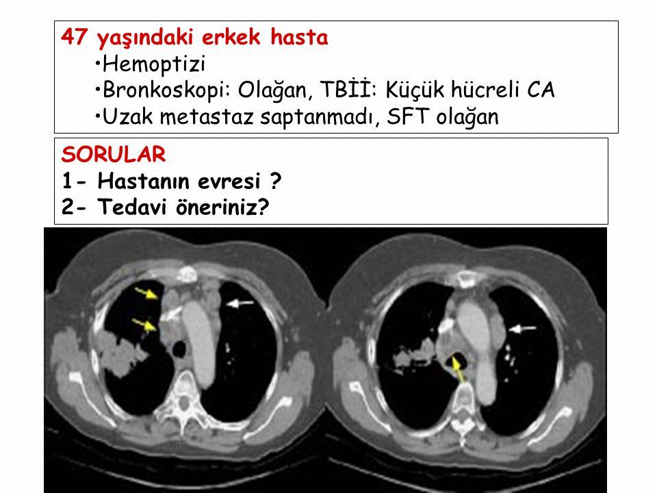 47 yaşındaki erkek hasta Hemoptizi Bronkoskopi: Olağan, TBİİ: Küçük hücreli CA Uzak metastaz saptanmadı, SFT olağan SORULAR 1- Hastanın evresi ? 2- Te