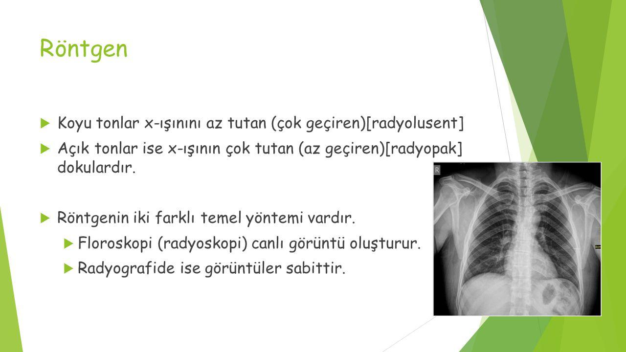 Röntgen  Koyu tonlar x-ışınını az tutan (çok geçiren)[radyolusent]  Açık tonlar ise x-ışının çok tutan (az geçiren)[radyopak] dokulardır.