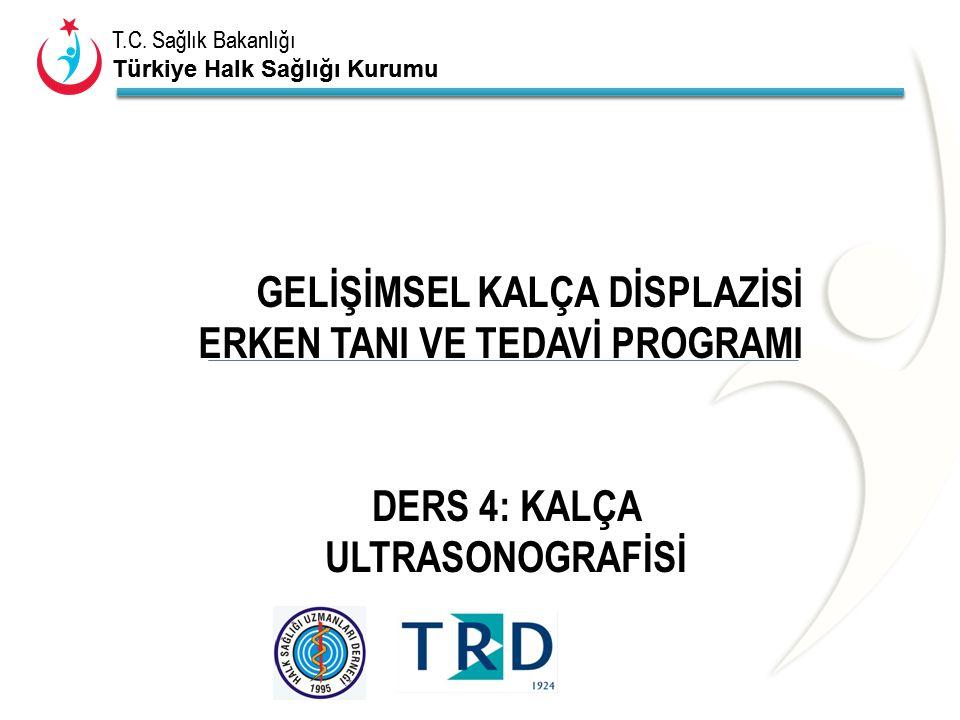 T.C. Sağlık Bakanlığı Türkiye Halk Sağlığı Kurumu T.C. Sağlık Bakanlığı Türkiye Halk Sağlığı Kurumu GELİŞİMSEL KALÇA DİSPLAZİSİ ERKEN TANI VE TEDAVİ P