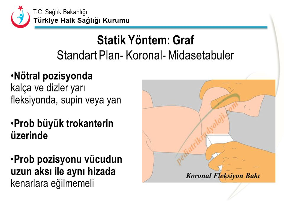T.C. Sağlık Bakanlığı Türkiye Halk Sağlığı Kurumu Statik Yöntem: Graf Standart Plan- Koronal- Midasetabuler Nötral pozisyonda kalça ve dizler yarı fle