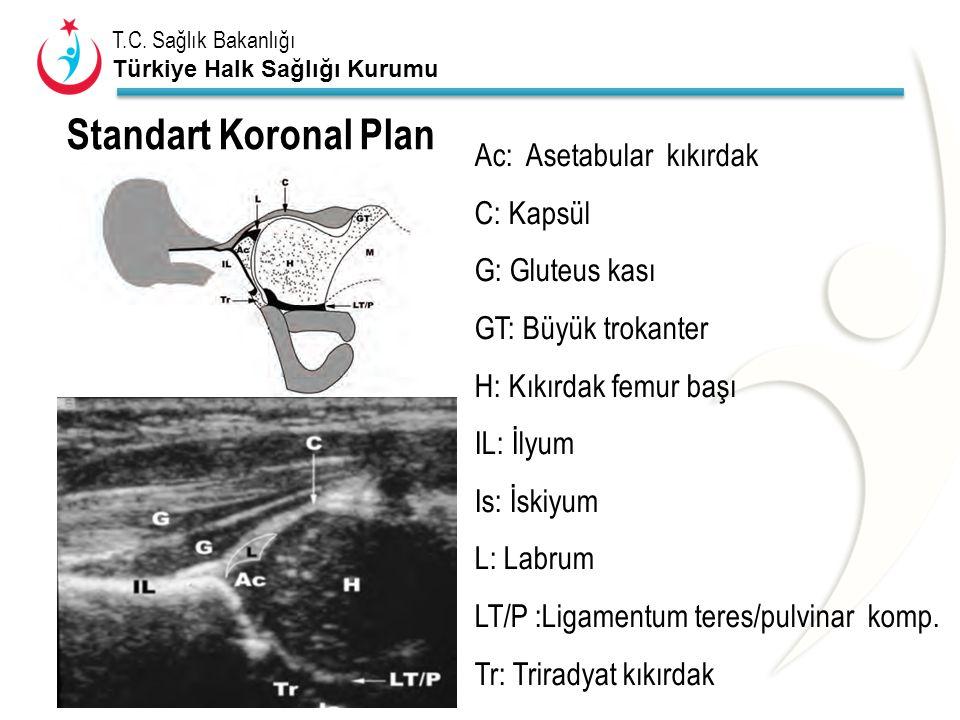 T.C. Sağlık Bakanlığı Türkiye Halk Sağlığı Kurumu Ac: Asetabular kıkırdak C: Kapsül G: Gluteus kası GT: Büyük trokanter H: Kıkırdak femur başı IL: İly