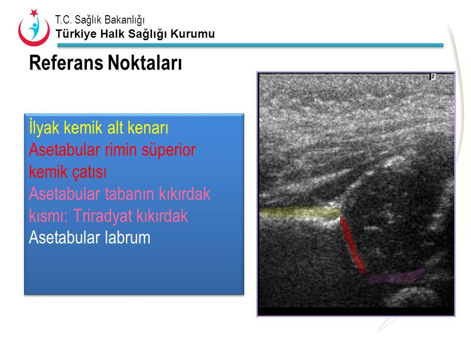 T.C. Sağlık Bakanlığı Türkiye Halk Sağlığı Kurumu Referans Noktaları İlyak kemik alt kenarı Asetabular rimin süperior kemik çatısı Asetabular tabanın