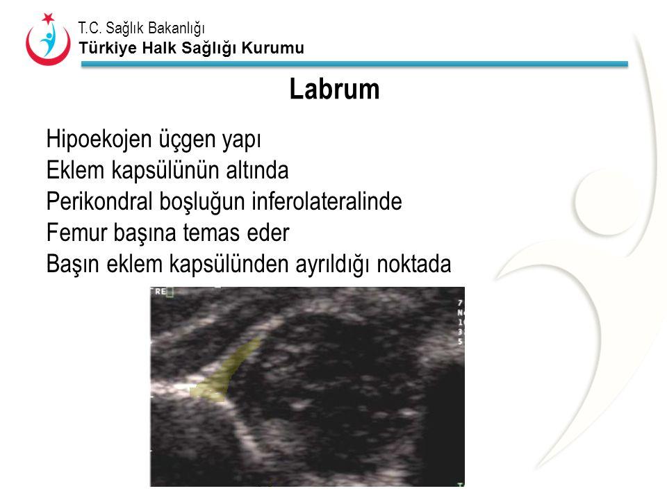 T.C. Sağlık Bakanlığı Türkiye Halk Sağlığı Kurumu Labrum Hipoekojen üçgen yapı Eklem kapsülünün altında Perikondral boşluğun inferolateralinde Femur b