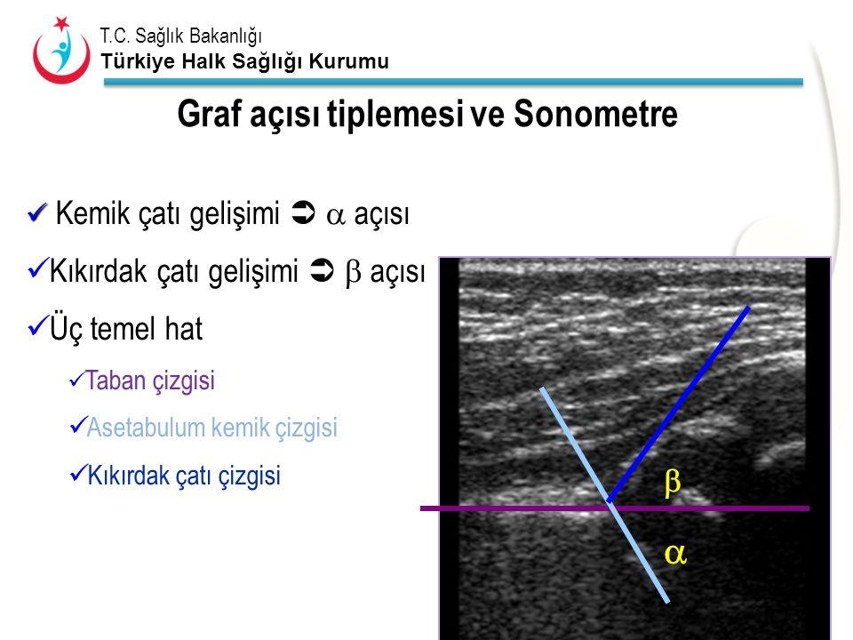 T.C. Sağlık Bakanlığı Türkiye Halk Sağlığı Kurumu Kemik çatı gelişimi   açısı Kıkırdak çatı gelişimi   açısı Üç temel hat Taban çizgisi Asetabulum