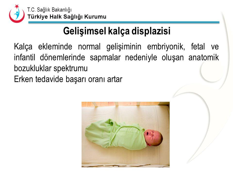 T.C. Sağlık Bakanlığı Türkiye Halk Sağlığı Kurumu Gelişimsel kalça displazisi Kalça ekleminde normal gelişiminin embriyonik, fetal ve infantil dönemle