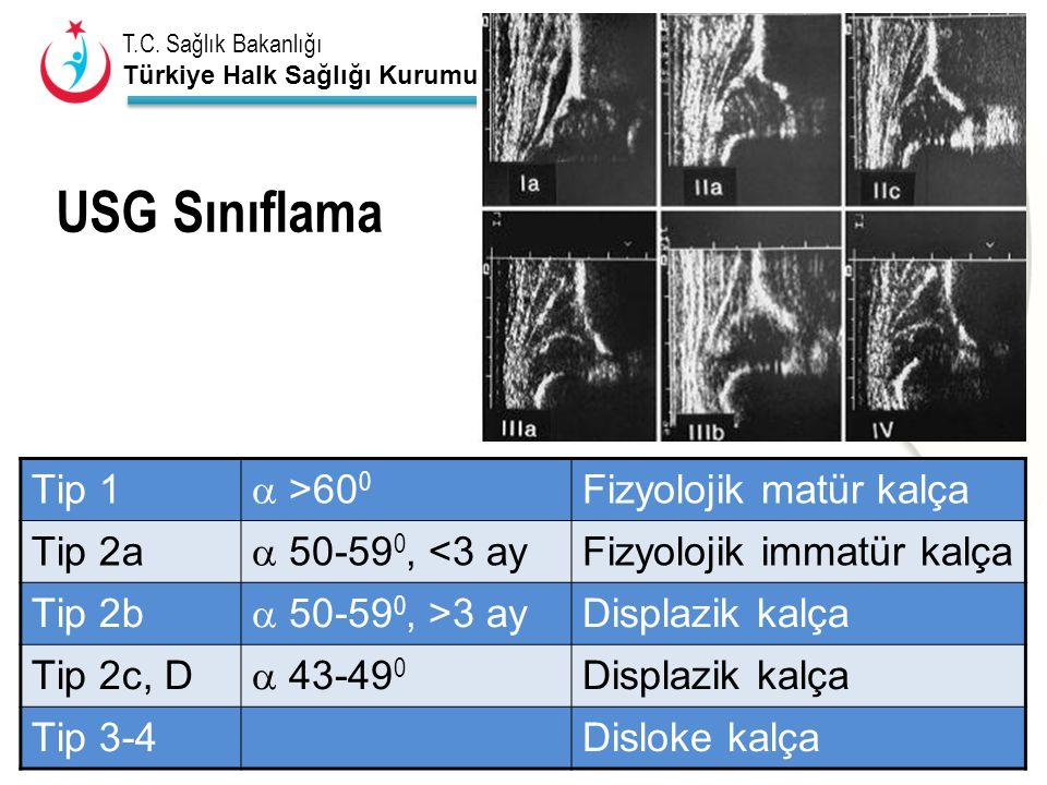 T.C. Sağlık Bakanlığı Türkiye Halk Sağlığı Kurumu USG Sınıflama Tip 1  >60 0 Fizyolojik matür kalça Tip 2a  50-59 0, <3 ay Fizyolojik immatür kalça