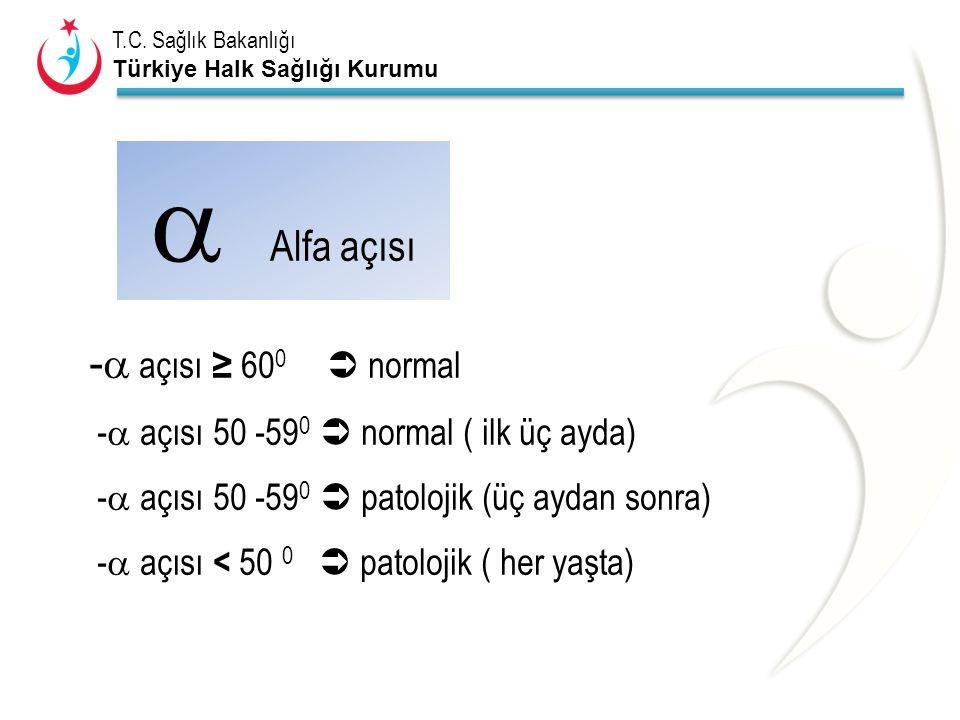 T.C. Sağlık Bakanlığı Türkiye Halk Sağlığı Kurumu -  açısı ≥ 60 0  normal -  açısı 50 -59 0  normal ( ilk üç ayda) -  açısı 50 -59 0  patolojik