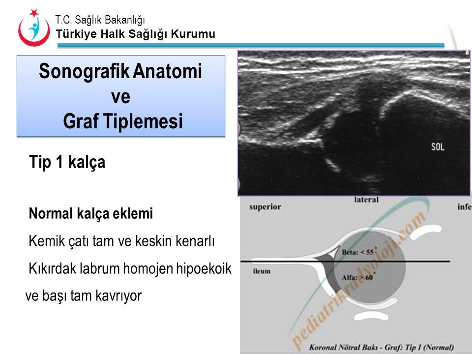 T.C. Sağlık Bakanlığı Türkiye Halk Sağlığı Kurumu Normal kalça eklemi Kemik çatı tam ve keskin kenarlı Kıkırdak labrum homojen hipoekoik ve başı tam k