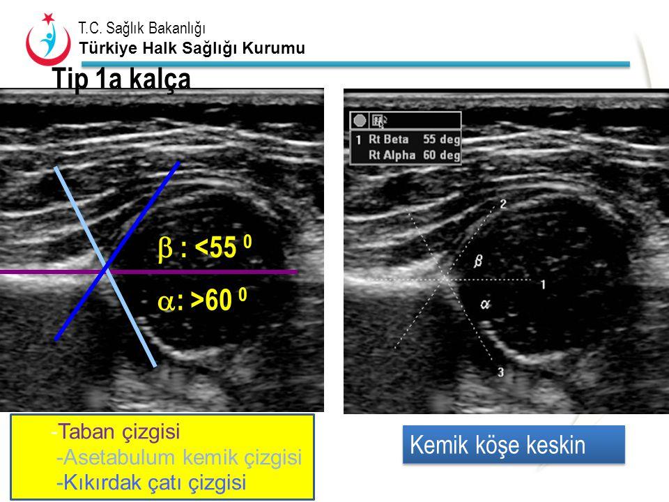 T.C. Sağlık Bakanlığı Türkiye Halk Sağlığı Kurumu Tip 1a kalça  : >60 0  : <55 0 -Taban çizgisi -Asetabulum kemik çizgisi -Kıkırdak çatı çizgisi Kem