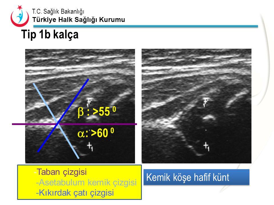 T.C. Sağlık Bakanlığı Türkiye Halk Sağlığı Kurumu Tip 1b kalça  : >60 0  : >55 0 Kemik köşe hafif künt -Taban çizgisi -Asetabulum kemik çizgisi -Kık