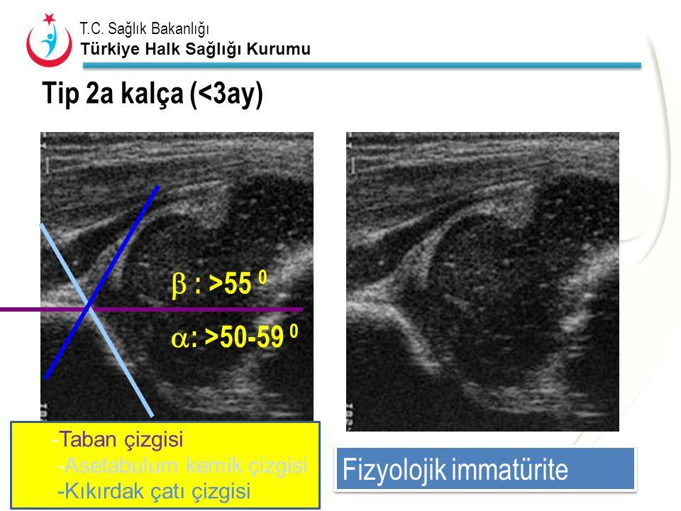 T.C. Sağlık Bakanlığı Türkiye Halk Sağlığı Kurumu Tip 2a kalça (<3ay)  : >50-59 0  : >55 0 Fizyolojik immatürite -Taban çizgisi -Asetabulum kemik çi