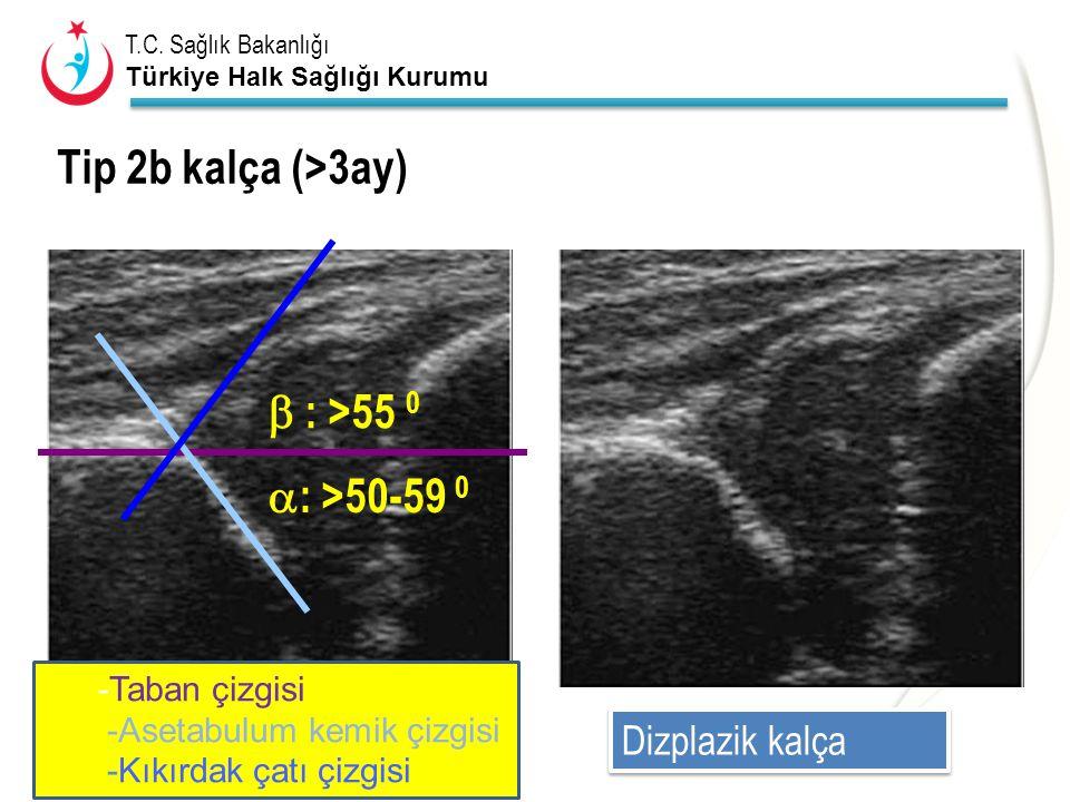 T.C. Sağlık Bakanlığı Türkiye Halk Sağlığı Kurumu Tip 2b kalça (>3ay)  : >50-59 0  : >55 0 Dizplazik kalça -Taban çizgisi -Asetabulum kemik çizgisi