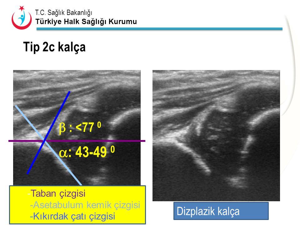 T.C. Sağlık Bakanlığı Türkiye Halk Sağlığı Kurumu  : 43-49 0  : <77 0 Tip 2c kalça Dizplazik kalça -Taban çizgisi -Asetabulum kemik çizgisi -Kıkırda