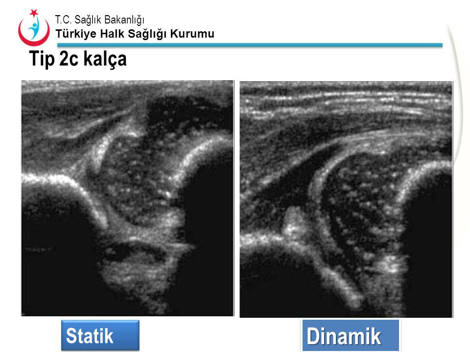 T.C. Sağlık Bakanlığı Türkiye Halk Sağlığı Kurumu Tip 2c kalça Statik DinamikDinamik