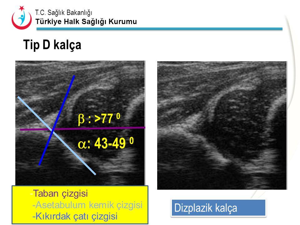 T.C. Sağlık Bakanlığı Türkiye Halk Sağlığı Kurumu Tip D kalça  : 43-49 0  : >77 0 Dizplazik kalça -Taban çizgisi -Asetabulum kemik çizgisi -Kıkırdak