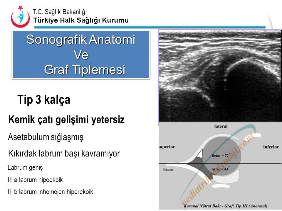 T.C. Sağlık Bakanlığı Türkiye Halk Sağlığı Kurumu Tip 3 kalça Sonografik Anatomi Ve Graf Tiplemesi Graf Tiplemesi Sonografik Anatomi Ve Graf Tiplemesi