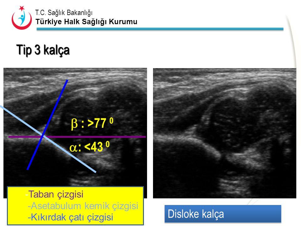 T.C. Sağlık Bakanlığı Türkiye Halk Sağlığı Kurumu  : <43 0  : >77 0 Tip 3 kalça Disloke kalça -Taban çizgisi -Asetabulum kemik çizgisi -Kıkırdak çat