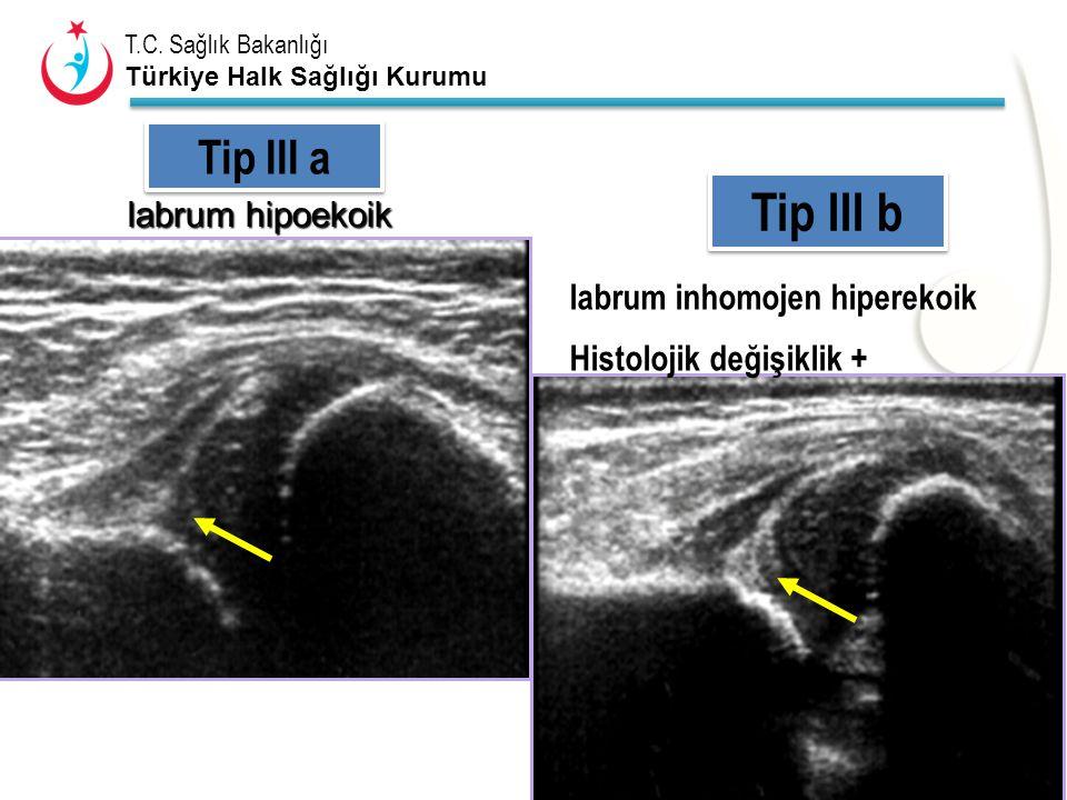 T.C. Sağlık Bakanlığı Türkiye Halk Sağlığı Kurumu Tip III a Tip III b labrum hipoekoik labrum hipoekoik labrum inhomojen hiperekoik Histolojik değişik