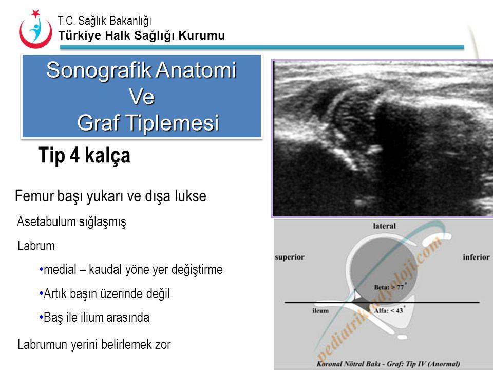 T.C. Sağlık Bakanlığı Türkiye Halk Sağlığı Kurumu Tip 4 kalça Femur başı yukarı ve dışa lukse Asetabulum sığlaşmış Labrum medial – kaudal yöne yer değ