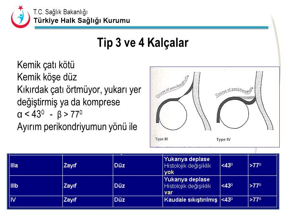 T.C. Sağlık Bakanlığı Türkiye Halk Sağlığı Kurumu Tip 3 ve 4 Kalçalar Kemik çatı kötü Kemik köşe düz Kıkırdak çatı örtmüyor, yukarı yer değiştirmiş ya