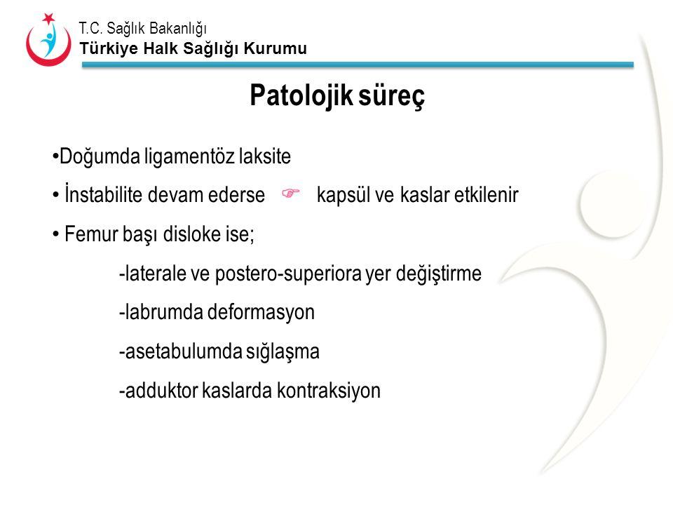 T.C. Sağlık Bakanlığı Türkiye Halk Sağlığı Kurumu Patolojik süreç Doğumda ligamentöz laksite İnstabilite devam ederse  kapsül ve kaslar etkilenir Fem
