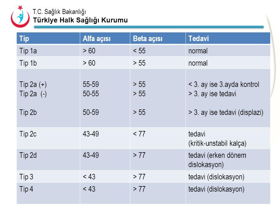 T.C. Sağlık Bakanlığı Türkiye Halk Sağlığı Kurumu TipAlfa açısıBeta açısıTedavi Tip 1a> 60< 55normal Tip 1b> 60> 55normal Tip 2a (+) Tip 2a (-) Tip 2b
