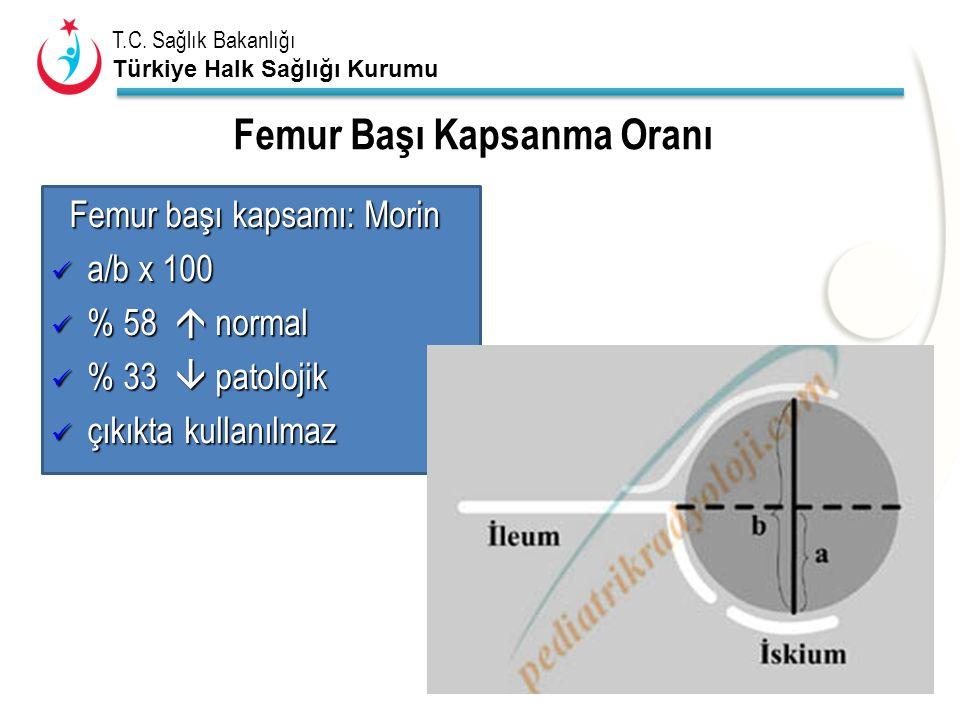 T.C. Sağlık Bakanlığı Türkiye Halk Sağlığı Kurumu Femur Başı Kapsanma Oranı Femur başı kapsamı: Morin Femur başı kapsamı: Morin a/b x 100 a/b x 100 %