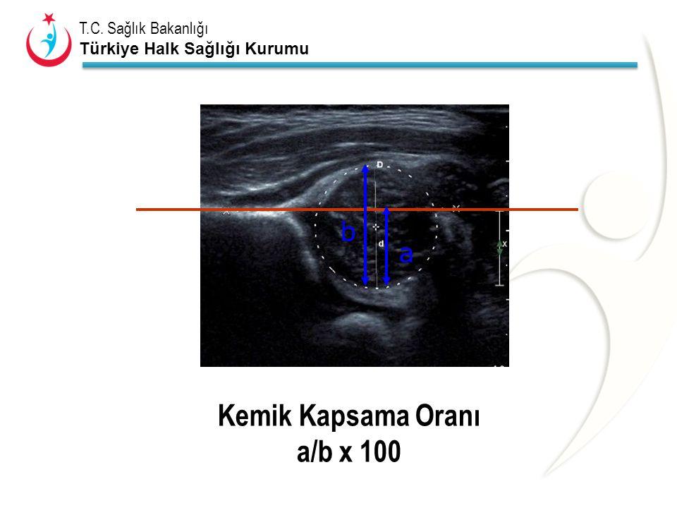 T.C. Sağlık Bakanlığı Türkiye Halk Sağlığı Kurumu Kemik Kapsama Oranı a/b x 100 b a