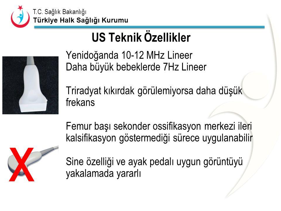 T.C. Sağlık Bakanlığı Türkiye Halk Sağlığı Kurumu US Teknik Özellikler Yenidoğanda 10-12 MHz Lineer Daha büyük bebeklerde 7Hz Lineer Triradyat kıkırda