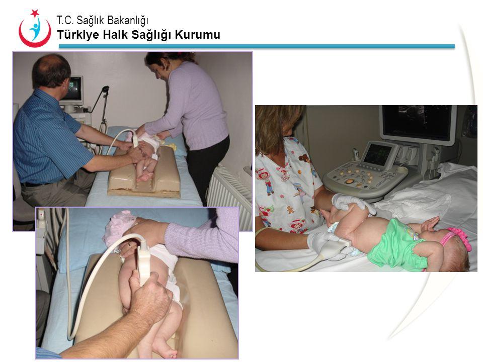 T.C. Sağlık Bakanlığı Türkiye Halk Sağlığı Kurumu R L Tip 2c kalça-Bilateral