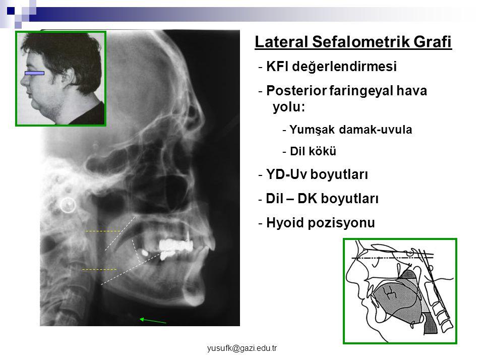 yusufk@gazi.edu.tr - KFI değerlendirmesi - Posterior faringeyal hava yolu: - Yumşak damak-uvula - Dil kökü - YD-Uv boyutları - Dil – DK boyutları - Hy