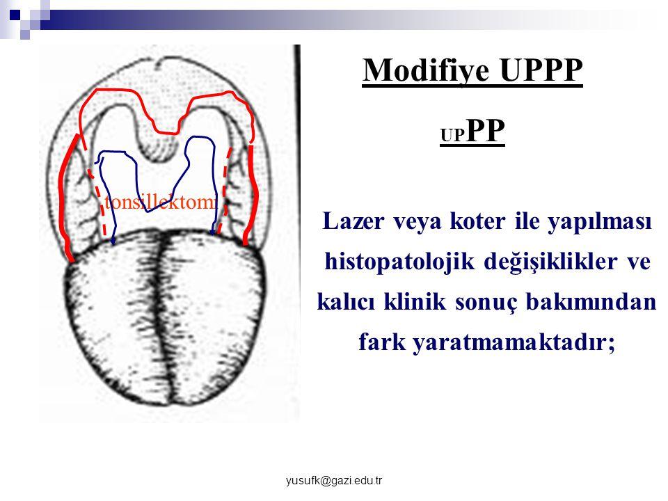 yusufk@gazi.edu.tr Modifiye UPPP UP PP tonsillektomi Lazer veya koter ile yapılması histopatolojik değişiklikler ve kalıcı klinik sonuç bakımından far