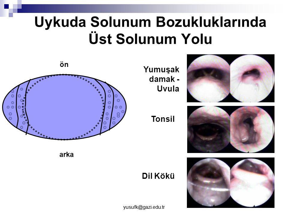 yusufk@gazi.edu.tr Uykuda Solunum Bozukluklarında Üst Solunum Yolu ön arka Yumuşak damak - Uvula Tonsil Dil Kökü