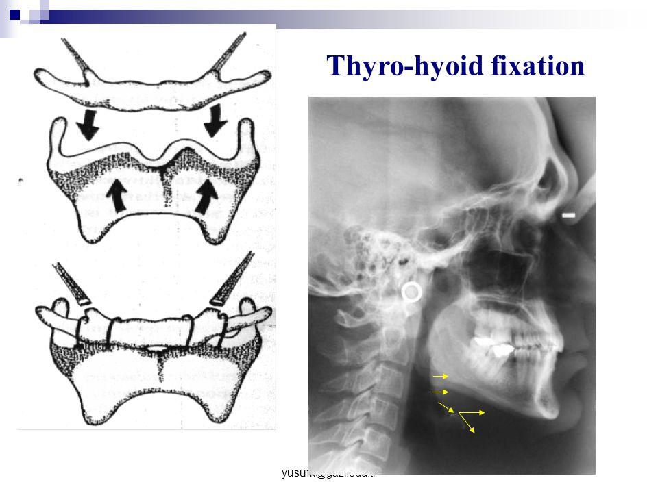 yusufk@gazi.edu.tr Thyro-hyoid fixation
