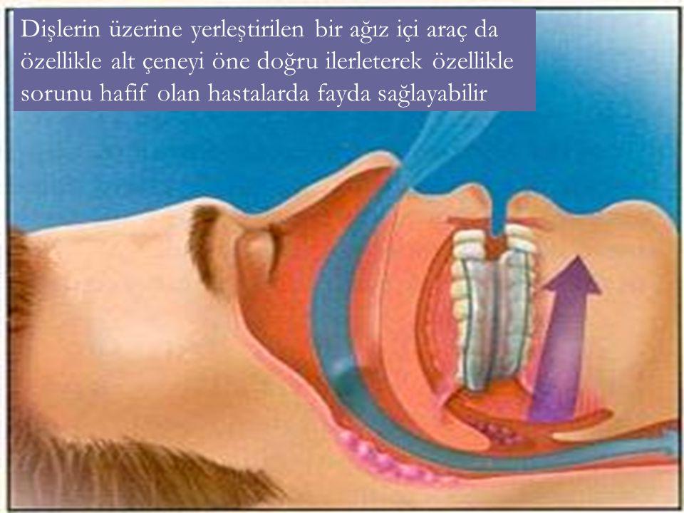 Dişlerin üzerine yerleştirilen bir ağız içi araç da özellikle alt çeneyi öne doğru ilerleterek özellikle sorunu hafif olan hastalarda fayda sağlayabil