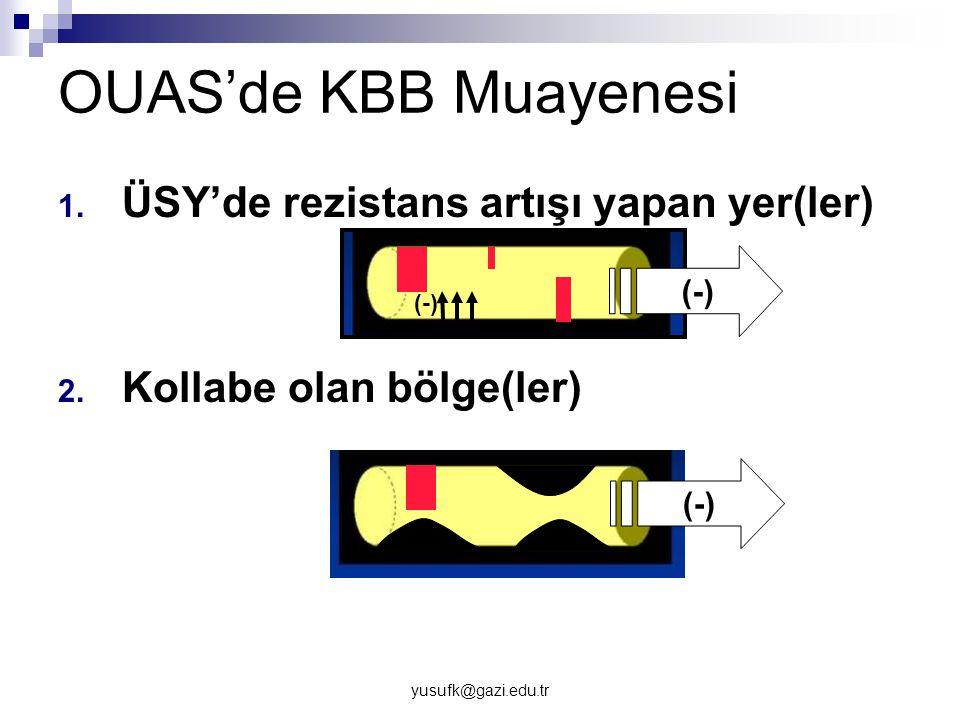 yusufk@gazi.edu.tr OUAS'de KBB Muayenesi 1. ÜSY'de rezistans artışı yapan yer(ler) 2. Kollabe olan bölge(ler) (-)